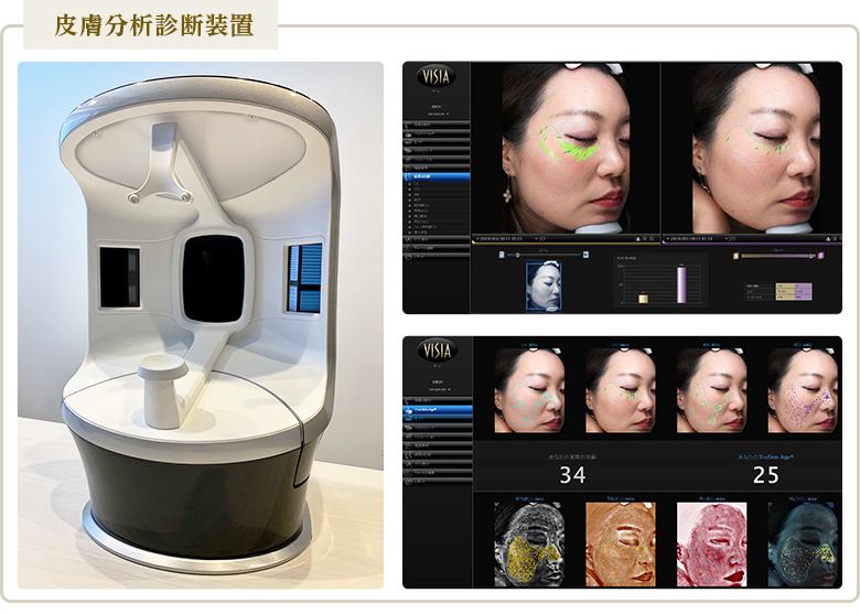 皮膚分析診断装置